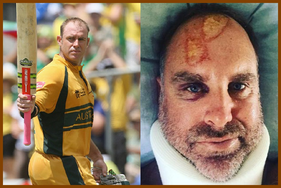 matthew hayden injured during sufring australian star cricketer