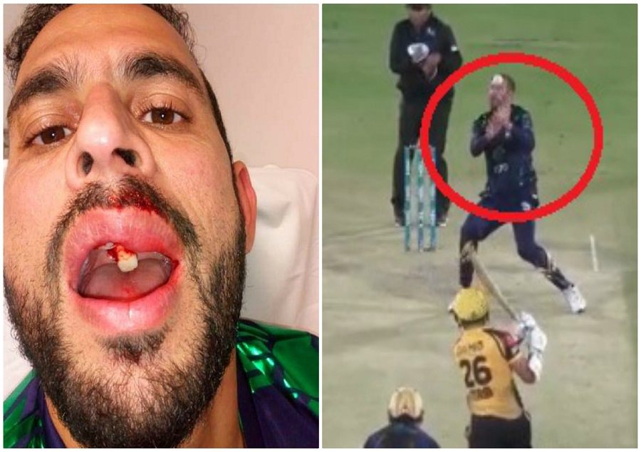 Fawad Ahmed Expected Play Just Days After Gruesome Facial Injury
