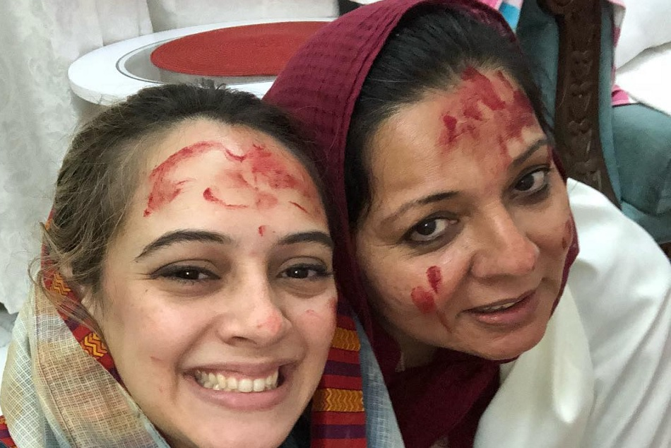 Yuvraj Singh S Wife Hazel Keech Has Undergone Through A Nose Sugery Thanks Her Mother In Law