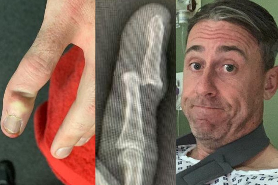 Surrey Rikki Clarke Suffers A Terrible Finger Injury