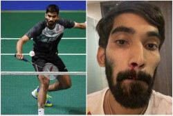Bwf Explains Kidambi Srikanth Bleeding Nose Resulting From The Swab Test For Covid