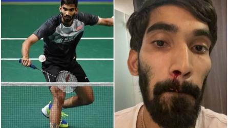COVID-19 स्वैब टेस्ट के बाद श्रीकांत की नाक से बहा खून, BWF ने बताया कारण